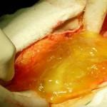 Pseudomixoma peritoneal (PMP)