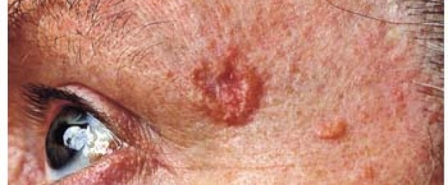 Novo tratamento para o câncer de pele avançado